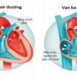 Bệnh hở van tim 3 lá có chữa được không?