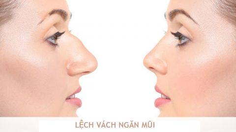 Lệch vách ngăn mũi: Nguyên nhân và cách điều trị