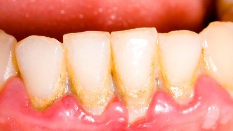 Răng bị mảng bám vàng thì phải làm sao?
