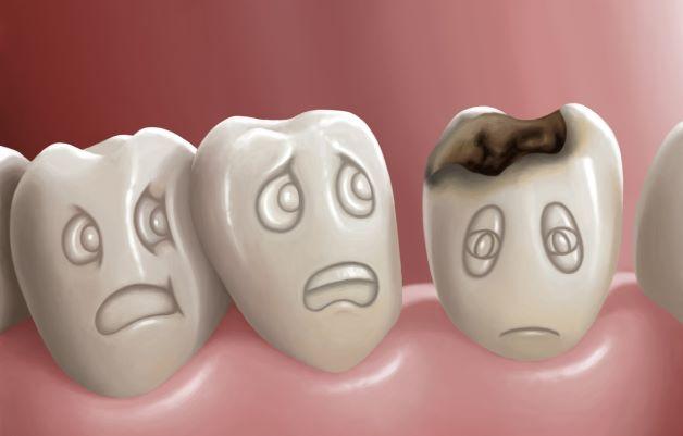 """Sâu răng được coi là một trong những nguyên nhân hàng đầu khiến trẻ bị những cơn đau răng """"hành hạ""""."""