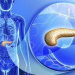 Những điều cần biết về ung thư tụy sau phẫu thuật