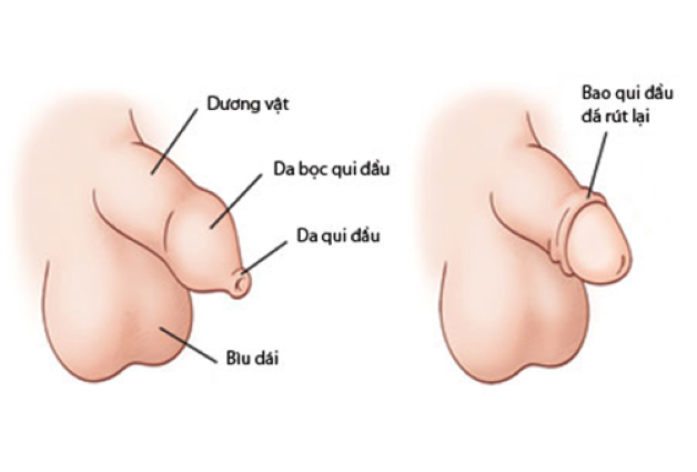 Cắt bao quy đầu trẻ em là hình thức can thiệp ngoại khoa vào vùng da bao bọc xung quanh dương vật của trẻ.
