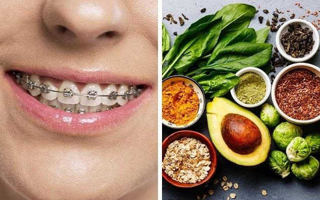 Để tránh tình trạng niềng răng bị hóp má đồng thời đảm bảo sức khỏe bản thân, nên xây dựng chế độ ăn uống hợp lý và khoa học, không nên kiêng khem quá kĩ dẫn đến thiếu chất.