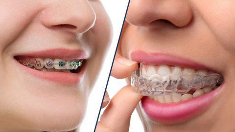 Khi nào cha mẹ cần niềng răng cho trẻ?