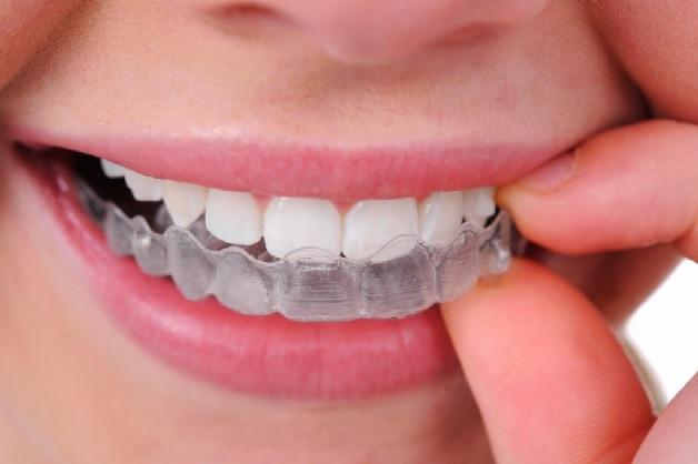 Niềng răng hàm dưới có đau không là thắc mắc của nhiều người