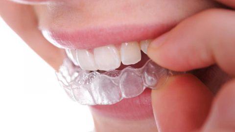 Niềng răng không mắc cài 3D Clear được dùng thế nào?