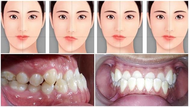 Niềng răng bằng mắc cài kim loại sẽ điều chỉnh lại khớp cắn. làm khít hai hàm với nhau, giúp người bệnh không còn khó chịu khi nhai, phát âm chuẩn hơn.