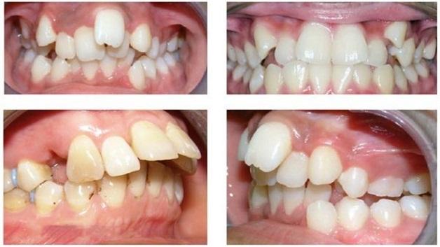 Niềng răng mắc cài kim loại là lựa chọn phù hợp cho những trường hợp răng mọc lệch