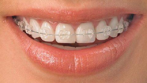 Niềng răng mắc cài pha lê và những điều cần biết