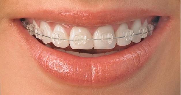 Niềng răng bằng mắc cài pha lê là công nghệ chỉnh nha sử dụng một mắc cài trong suốt, đem lại tính thẩm mỹ cao cho người niềng.
