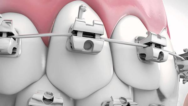 Niềng răng mắc cài tự động có điểm nổi bật là khắc phục được những sự cố do dây chun gây ra