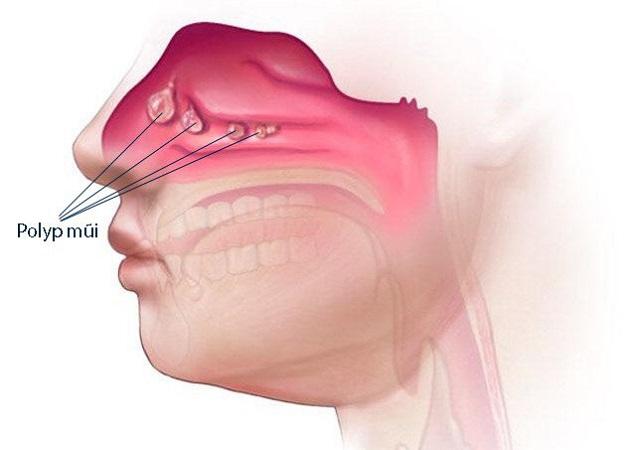 Polyp mũi là thường xảy ra ở lớp niêm mạc mũi và khu vực các xoang