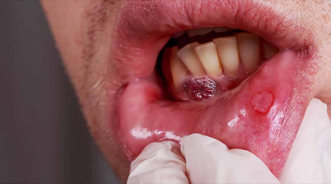 Phát hiện sớm ung thư khoang miệng thông qua các dấu hiệu bất thường