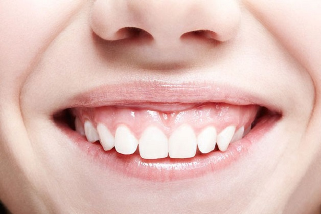 Nướu phát triển quá dày là một trong nguyên nhân khiến cười hở lợi.