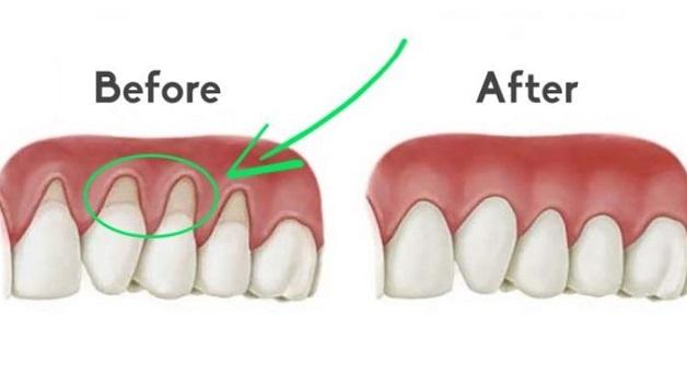 Phẫu thuật ghép lợi có khả năng che phủ chân răng và tái tạo mô nướu rất hiệu quả