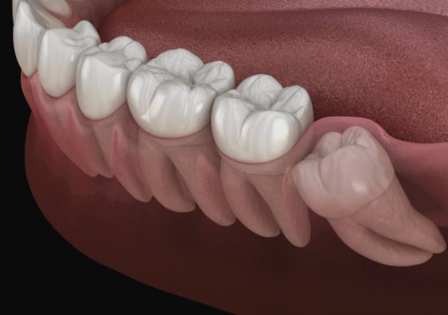 Nếu không điều trị kịp thời, răng khôn có thể gây ra nhiều ảnh hưởng cho người bệnh