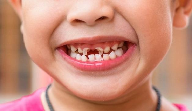 Rất nhiều bé 6 tuổi bị sâu răng