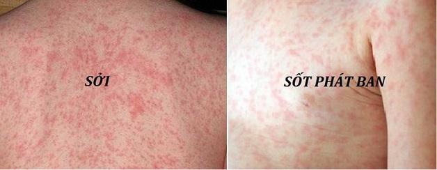 Với bệnh sốt phát ban và sởi, mẹ cần phân biệt qua nốt ban nổi trên da bé.