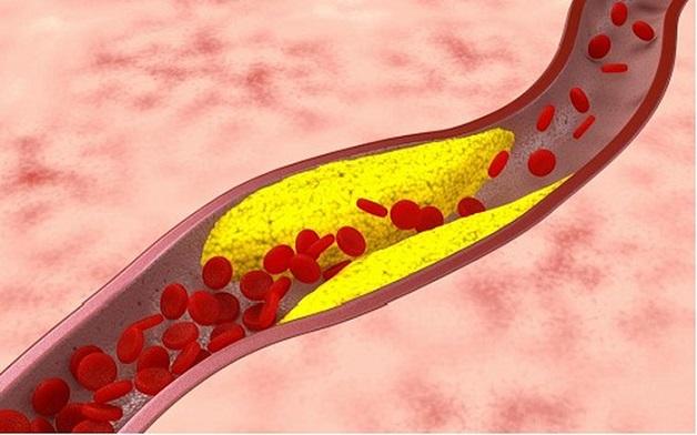 Tắc nghẽn mạch vành là hiện tượng động mạch vành bị tắc hẹp do các mảng xơ vữa hoặc huyết khối