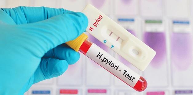Xét nghiệm máu test vi khuẩn HP không được ưu tiên thực hiện