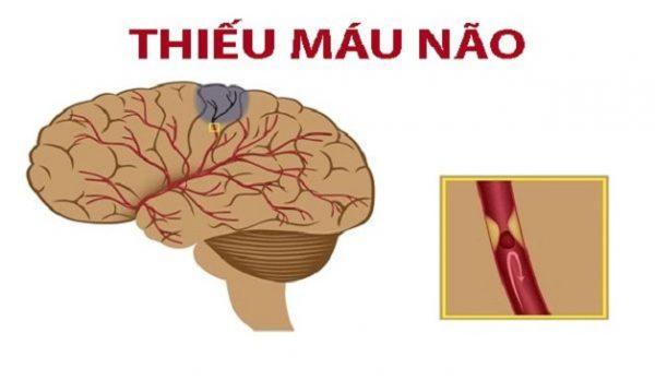 thiếu máu não triệu chứng là gì?