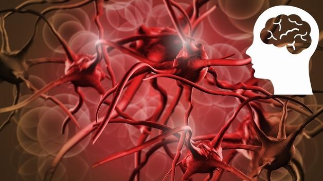 Thiếu máu lên não là gì và nguyên nhân do đâu