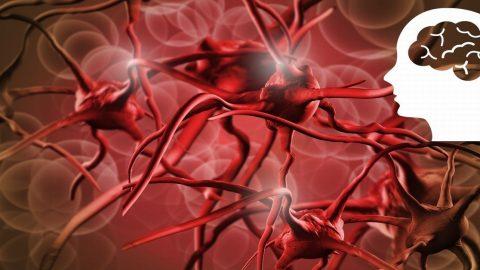 Thiếu máu não phải làm sao để cải thiện?