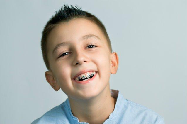 Thời gian chỉnh nha của trẻ em thường nhanh hơn của người lớn