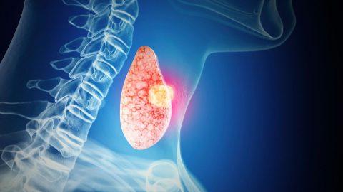 Tìm hiểu 2 phương pháp xét nghiệm ung thư tuyến giáp