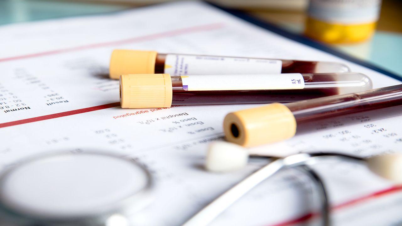 Ung thư tụy xét nghiệm máu: CA 19-9 có ý nghĩa gì?