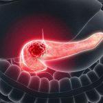 Ung thư tuyến tụy giai đoạn 3 và cách điều trị