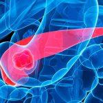Ung thư tuyến tụy giai đoạn 4: Liệu có chữa được không?
