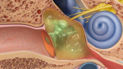 Vá màng nhĩ có hồi phục chức năng nghe không?