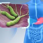 Vi khuẩn HP lây theo đường nào và phòng tránh ra sao?