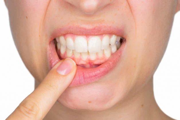 Viêm nha chu là một trường hợp chống chỉ đinh thực hiện dán răng sứ