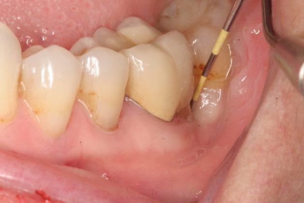 Khi phần mô quanh cuống răng bị viêm nhiễm sẽ gây nên hiện tượng viêm quanh cuống răng