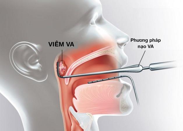 Mô phỏng hình ảnh viêm VA