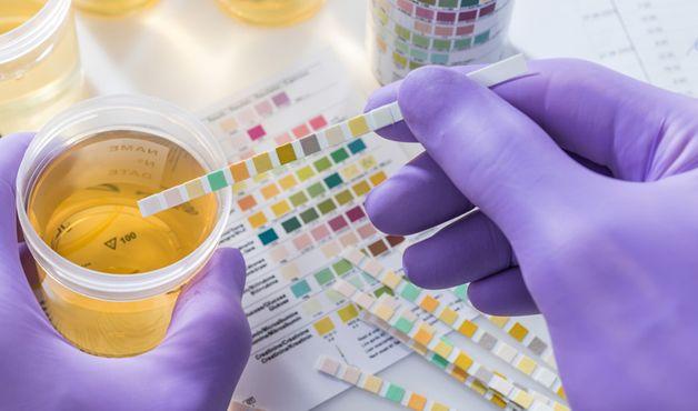giá xét nghiệm acid uric