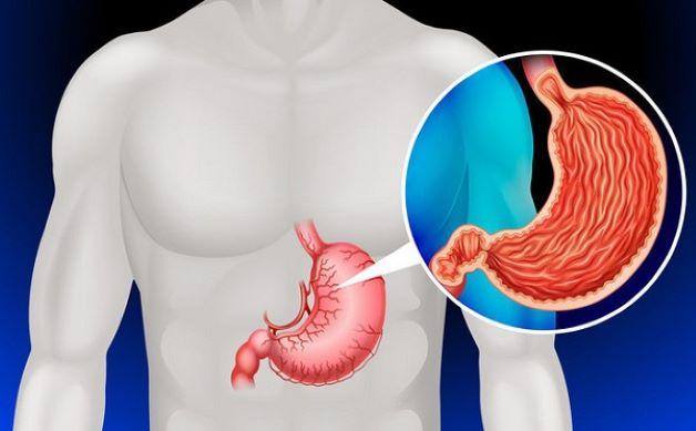 Xét nghiệm sinh thiết dạ dày