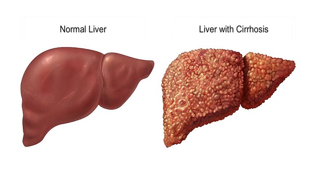 Xơ gan làm suy giảm chức năng gan