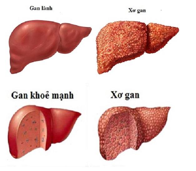 Xơ gan cổ trướng là gì? Là khi các tế bào gan trở thành các mô xơ.