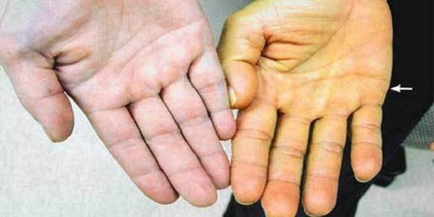 Vàng da là một trong những triệu chứng dễ nhận biết của bệnh xơ gan cổ trướng.