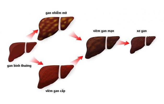 Xơ gan có phục hồi được không? Việc phục hồi còn tùy thuộc vào giai đoạn phát triển của bệnh.