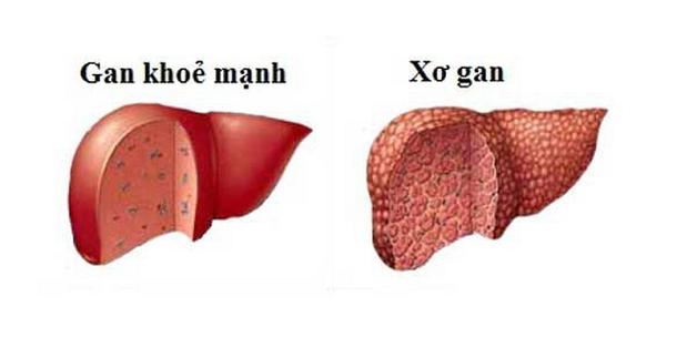 Gan bị tổn thương sẽ có bề mặt sần sùi, nổi nhiều cục u.