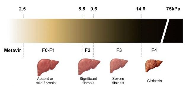 Xơ gan F2 là giai đoạn nhẹ của bệnh xơ gan.