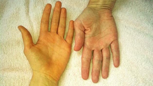 Vàng da là một trong những triệu chứng cơ bản của xơ gan.