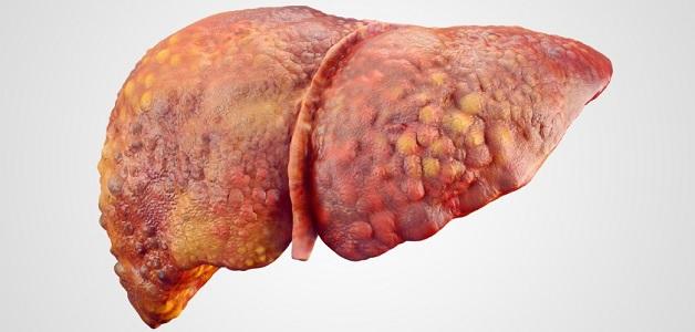 Xơ gan là gì? Đây là một bệnh lý vô cùng nguy hiểm đối với sức khỏe