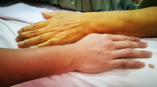 Xơ gan làm thay đổi màu da người bệnh