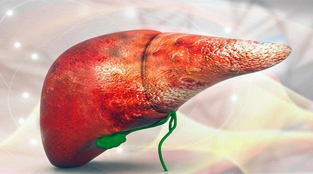 Xơ gan là con đường ngắn nhất dẫn đến ung thư gan