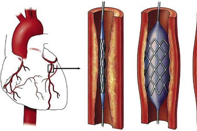 Tắc mạch vành tim có thể được điều trị thông qua việc phẫu thuật đặt sten